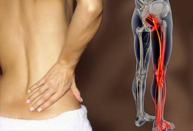 Instant relief sciatica therapy