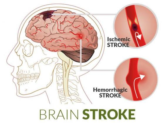 Post-stroke paralysis curative therapy