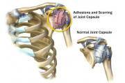 Periarthritis of Shoulder painless therapy